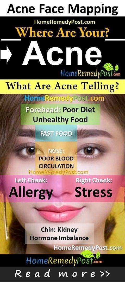 Akne & Pickel: Was Ihre Akne über Ihre Gesundheit aussagt: Akne Face Mapping, wo sind Ihre Akne? Aknebehandlung, klare Akne über Nacht, Akne zeigen Gesundheit an, wie Pickel, Aknemittel, Aknebereiche, Akne, Pickel, Haut, Haut, etc., entfernt werden können