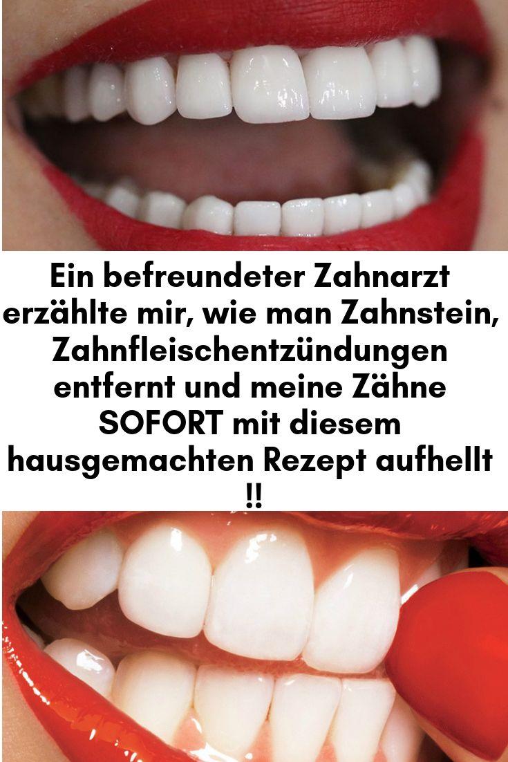 Ein befreundeter Zahnarzt erzählte mir, wie man Zahnstein, Zahnfleischentzündu… Rebecca Kraatz