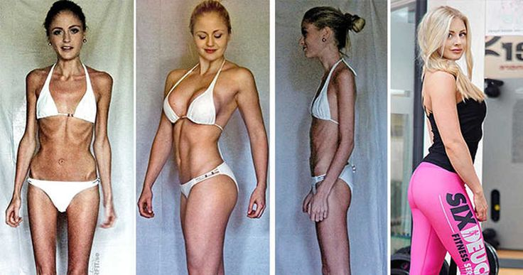 15+ Before & After Photos Of Anorexia Survivors Showing Their Breathtaking Transformation