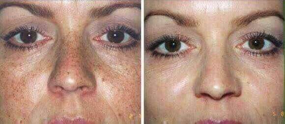 öregedésgátló arclemosónk és hidratáló kérmünk segít a napsugárzás okozta DNS sérüléseken, melyek a májfoltokért és a ráncokért felelnek.