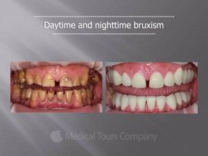 #Bruxism (#teeth grinding), a condition caused by stress. Case study: http://medicaltours.co.uk/blog/blog_mod/bruxism-a-condition-caused-by-stress/