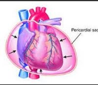 Pericardial Effusion, symptoms of Pericardial Effusion and treatment of Pericardial Effusion