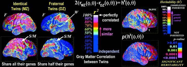estudio con una muestra de 3.686 personas, no relacionadas entre ellas y con un rango de edad de  45-98  años. se quiso estudiar como afecta la heredabilidad a las estructuras subcorticales y de como, a su vez, se producen diferencias individuales en las mismas, a traves de la resonancia magnetica cerebral