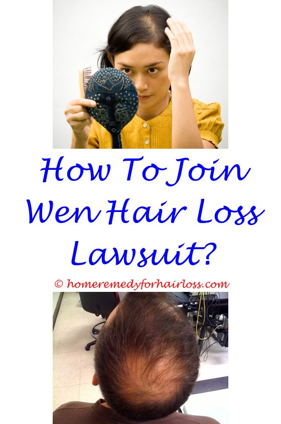 stages hair loss - dog hair loss weight loss.rinsing with coffee stops hair loss castor oil vs olive oil for hair loss nizoral shampoo hair loss 7027867731