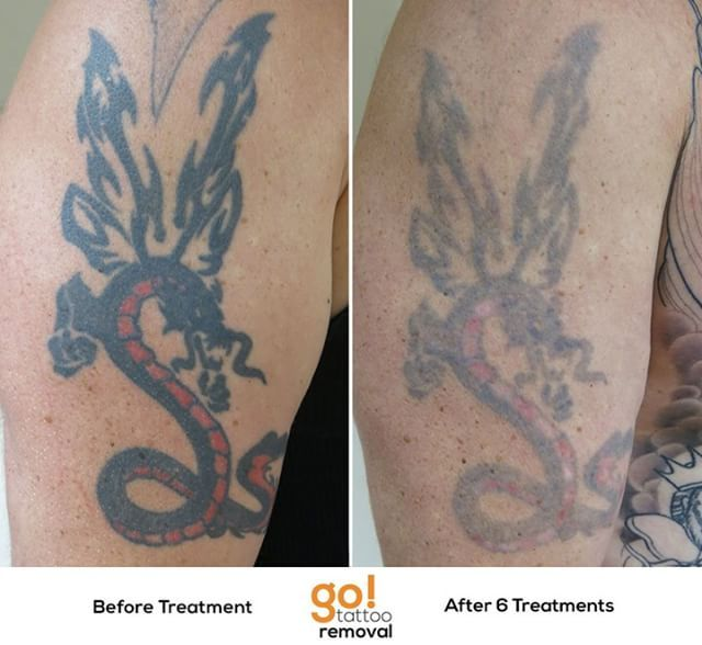 Heavy Black Tattoo Cover Up: Heavy Thick And Solid Black Tattoos Can Be Stubborn