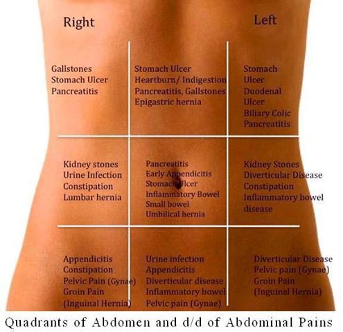 differential diagnosis abdominal pain quadrant - good to know