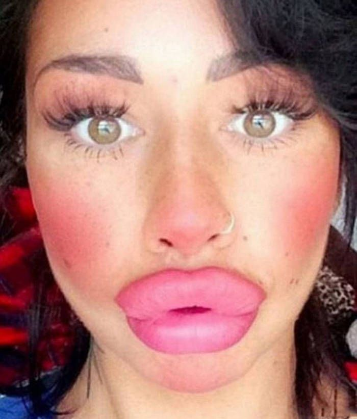 Lips Disaster That Will Shock You 33 Photos Funny Lips Fake