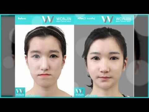plastic surgery in korea essay Korea as many other parts of the world was affected by the global financial crisis since 2009 demand for better living standards and hunting for employment has directly been felt by the.