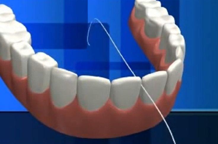Artikel dan tips tentang flossing atau membersihkan gigi dengan benang gigi yang dapat menjaga kesehatan gigi dan mulut secara keseluruhan.