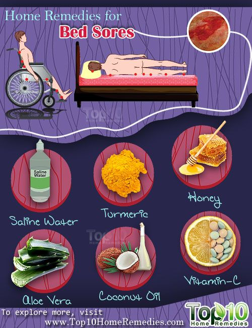 Natural Remedies For Healing Bed Sores