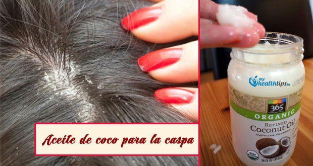 Aceite De Coco Para La Caspa Coconut Oil For Dandruff Coconut Oil Treatment Coconut Oil Scalp