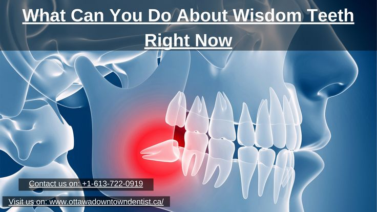 The wisdom teeth develop at the back of your gums and are the last teeth to come through. A great many people have four wisdom teeth – one in every corner. With Ottawa dental you can do your entire query about wisdom teeth right now right here. Call on +1-613-722-0919, for more details see- https://goo.gl/fP7vAF
