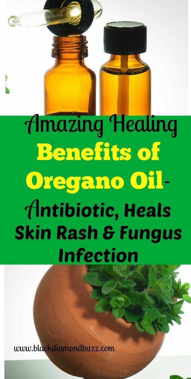 Best Oregano Oil Health Benefits and Uses - Antibiotic, Heals Skin Rash & Fungus Infection