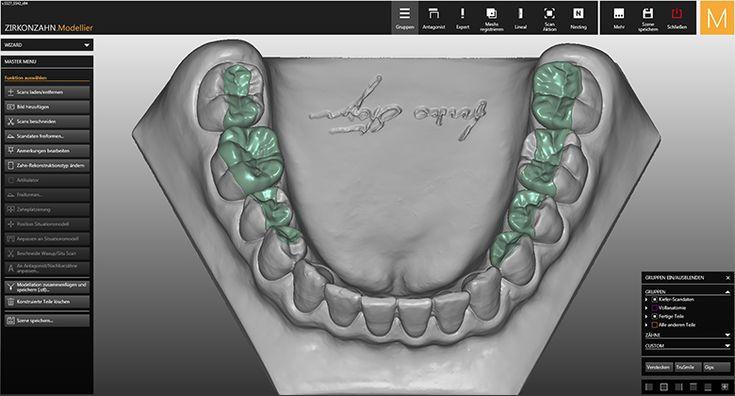 Software Module CAD/CAM Inlays/Onlays/Veneers