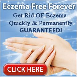 Home Remedies to Cure Eczema | Home remedies have been found to be very effective for many in treating eczema if one doesn't work for you; there are many others to try. This is one of the reasons that home remedies are recommended to treat eczema. http://www.skinnbeautycare.com/skin-problem/eczema/home-remedies-to-cure-eczema/