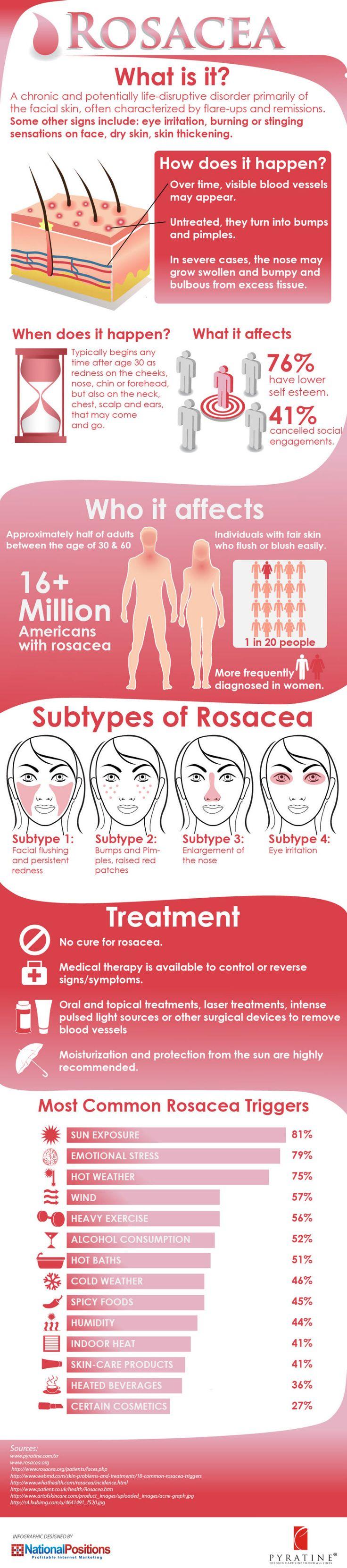 9 best Rosacea images on Pinterest | Acne rosacea, Rosacea ...