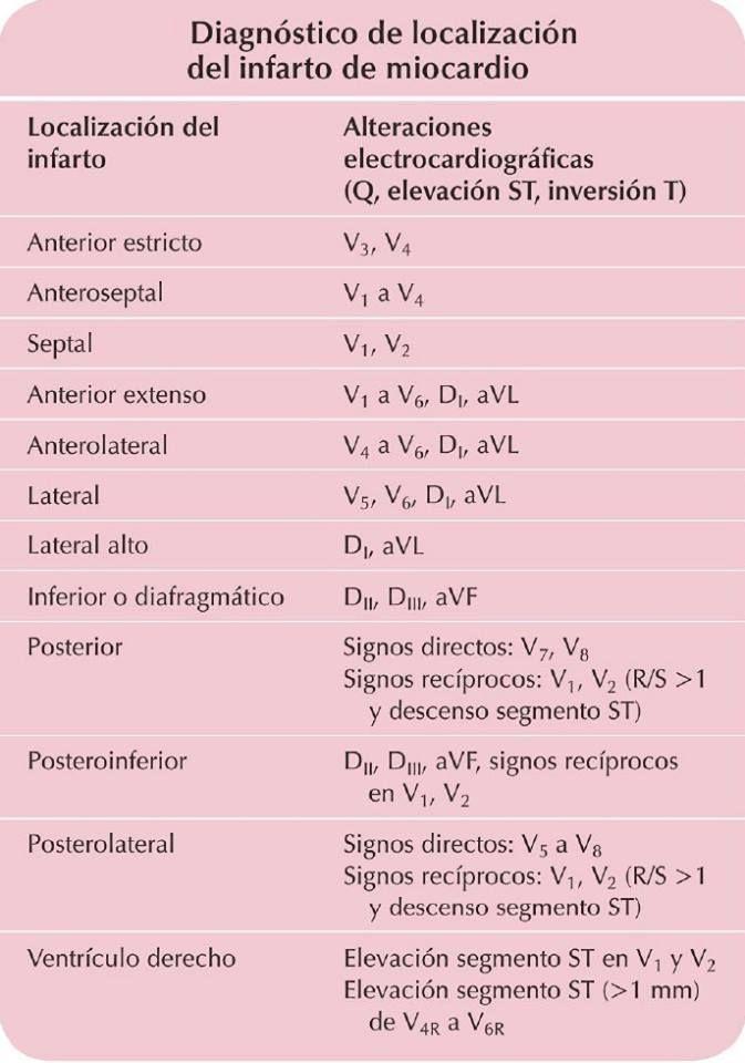 Localización del infarto agudo del miocardio.  Las alteraciones en el trazo que se relacionan a un IAM son una onda Q ancha y empastada, la elevación del segmento ST y una onda T invertida.