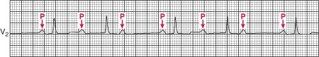The PR interval progressively lengthens with each beat until the atrial impulse is not conducted and the QRS complex is dropped (Wenckebach phenomenon); AV nodal conduction resumes with the next beat, and the sequence is repeated.