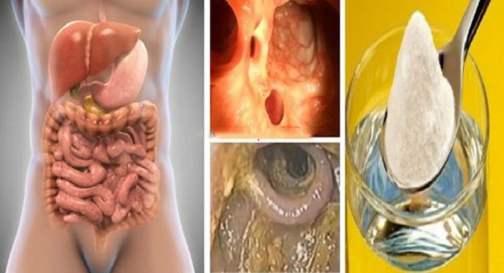 3 Days Colon, Liver And Lungs Detox That Will Remove All Toxins, Fat, Excess Water And Clear Up Clogged Arteries