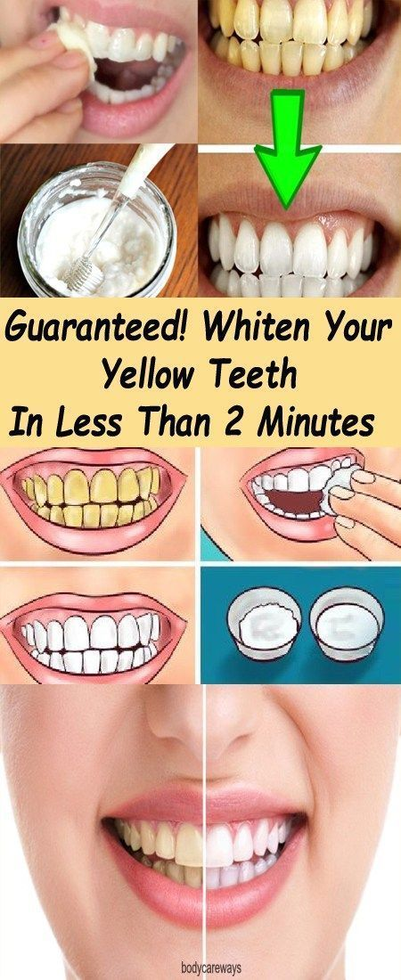 The All Natural Way To Get Super White Teeth Beauty Tips