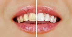 10-dicas-clarear-dentes