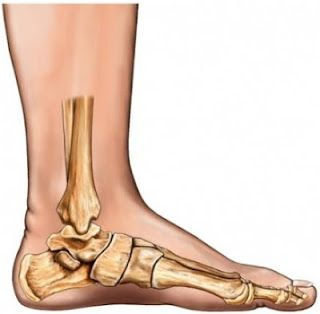 Symptoms And Treatment of Flat Foot Problems | Health Zine