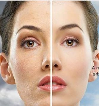 Retin A for wrinkles, and retin A micro, in the right dosage make the best product for getting rid of wrinkles on face, forehead and under eye lines. Here is the right dosage, best cream, before and after pictures, side effects and how to use tretinoin to remove wrinkles fast.