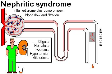 NEPHRITIC SYNDROME (nephritis)      Indicates acute inflammation of glomeruli          hematuria (including red cell casts)          mild to moderate proteinuria          oliguria, hypertension and mild edema      If the process continues, the glomerulus may be destroyed