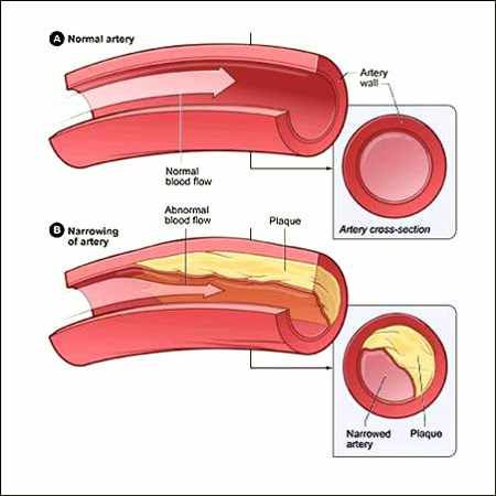 how to clear plaque from arteries