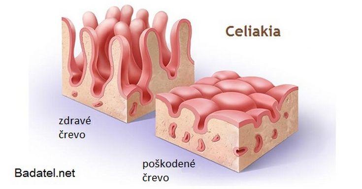 Príznaky celiakie a alergie na lepok, o ktorých väčšina ľudí nevie