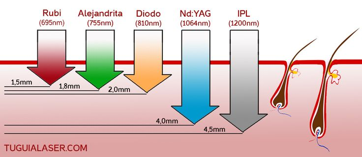 Los tratamientos de depilación permanentes alcanzan diferentes profundidades según el tipo de Depilacion Laser o IPL utilizado. Entra en www.tuguialaser.com para entender las ventajas y desventajas de cada tratamiento y hacerte tu propia opinión.  #Depilacion #Longitud #Onda #Vello #IPL #Laser #Rubi #Alejandrita #Soprano #LightSheer #Diodo #Nd-YAG