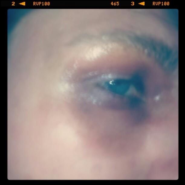 Brusied eye makeup