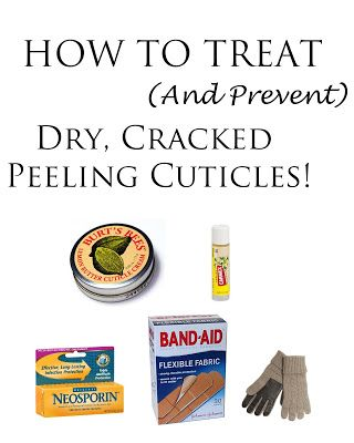 QuinnFace: How to Heal Cracked Cuticles (And prevent them too!)