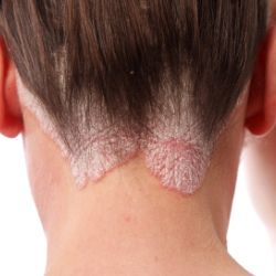 Various Treatment Options For Psoriasis - http://www.mattindia.com/kerala-ayurvedic-treatments.html