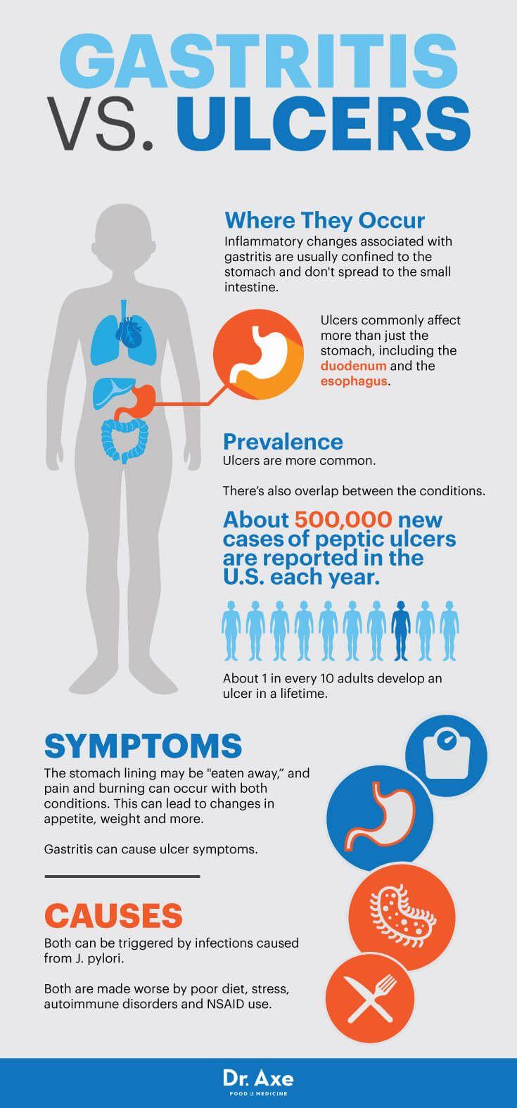 1 Week Gastritis Diet Plan