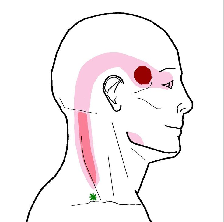 Headache in my temple. Here is the referral pattern from the trapezius near your collar-bone. The darker color indicates areas of stronger, more likely pain.The trigger point is located near the g...
