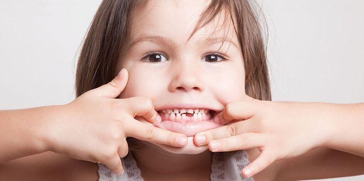 Cómo suelen aparecer los dientes permanentes en la boca de tu pequeño. #Desarrollo #Crecimiento #Maternidad #Niños