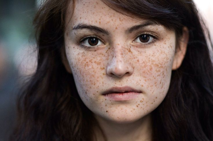 freckles beauty