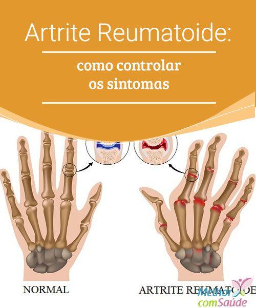 Artrite Reumatoide: como controlar os sintomas   A Artrite Reumatoide é uma doença autoimune, crônica e inflamatória. Manifesta-se principalmente nas articulações. Veja formas alternativas de tratamento