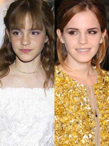 Child Stars: Then And Now -- Child star: Emma Watson -- Emma Watson (born 15 April 1990) was catapulted onto the world stage as Hermione Granger in the Harry Potter film series. from: nowmagazine.co.uk