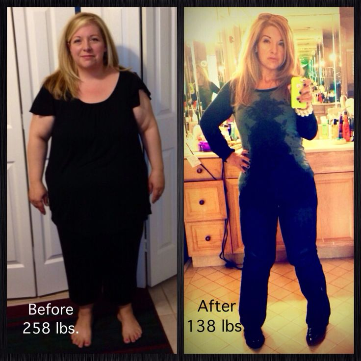 Gastric Sleeve Before & After 120 Pounds Down!