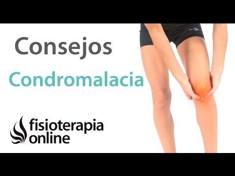 2 Cosas que debes saber sobre la condromalacia o condropatía rotuliana - YouTube