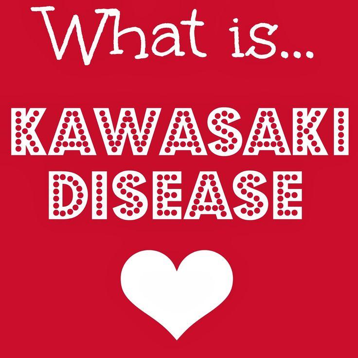 ... Related: Kawasaki Disease Rash , Kawasaki Disease In Children
