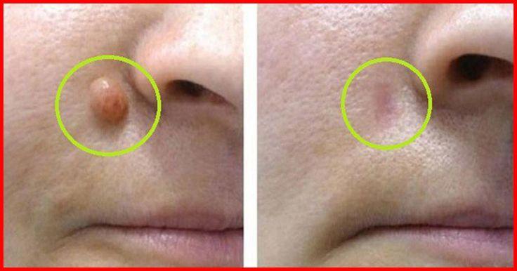 La plupart des verrues sont mous et fragiles, elle sont considérées comme des tumeurs bénignes du tissu conjonctif et leur taille varient chez l'homme comme chez la femme.En général , une verrue a la même pigmentation de la peau. Quelle est la raison derrière l'apparition d'une verrue…