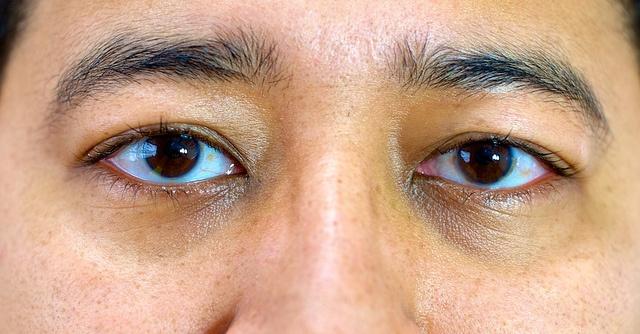 Olhos Dia 5 após cirurgia laser PRK de correção de miopia by Caio R. N. Pereira, via Flickr http://minhacirurgia.wordpress.com/