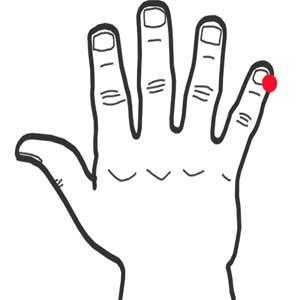 Presser, au rythme d'une pression par seconde, l'extrémité du petit doigt, de part et d'autre de l'ongle auriculaire. Presser au minimum une dizaine de fois pour prévenir la fatigue, Une soixantaine de fois en cas de perte de connaissance. La stimulation de ce point est tégalement efficace contre l'abattement, le chagrin, la neurasthénie.