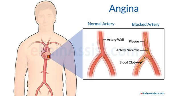 Angina - symptoms, causes and its associated risk factors