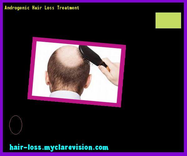 Androgenic Hair Loss Treatment 105523 - Hair Loss Cure!