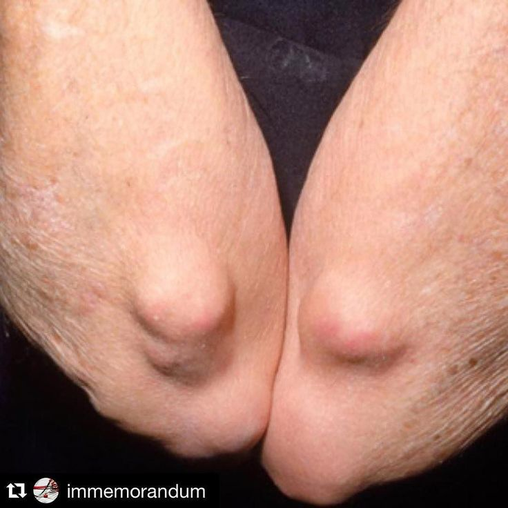 @immemorandum Is the best internal medicine ig we have found. Rheumatoid nodules: Rheumatoid nodules are firm nontender lesions that typically occur in areas of trauma in individuals with rheumatoid arthritis. Nodules are present near the elbows in this patient.
