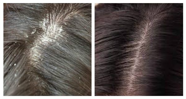 The Most Effective Natural Solution to Get Rid of Dandruff and Itchy Scalp - http://nifyhealth.com/the-most-effective-natural-solution-to-get-rid-of-dandruff-and-itchy-scalp/